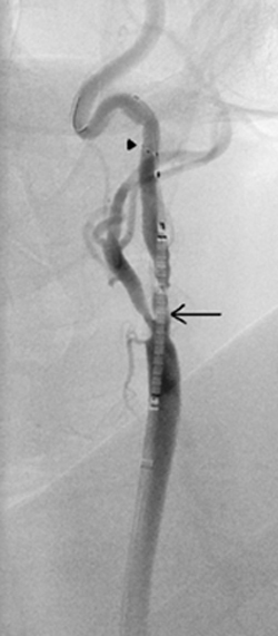 An intra-procedural angiogram of a patient