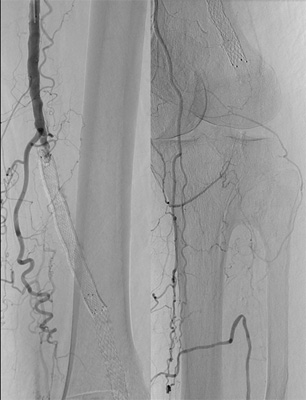 The angiographic findings of SFA stent