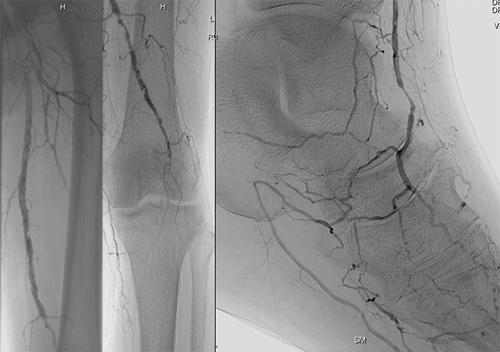 Peripheral Vascular Disease Angiogram